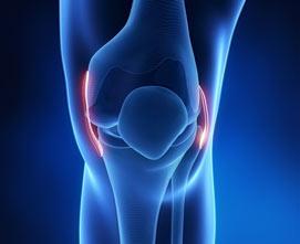 Артроскопическая реконструкция или замена связок колена