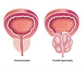 Лечение фиброза предстательной железы в Израиле